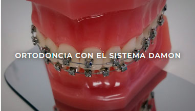 ortodoncia en ferrol